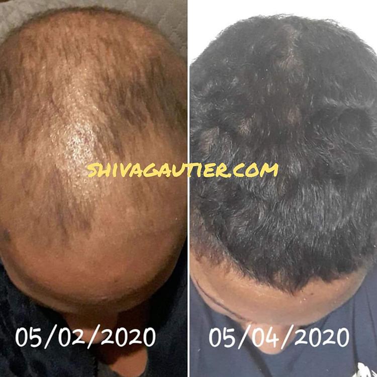 Temoignage-1-Shiva-gautier-qui-sommes-nous-produits-capillaires-cheveux-serum-antichute-pommade-masque-hydrate.jpg