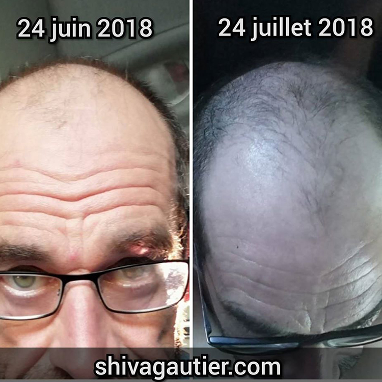Temoignage-2-Shiva-gautier-qui-sommes-nous-produits-capillaires-cheveux-serum-antichute-pommade-masque-hydrate.jpg